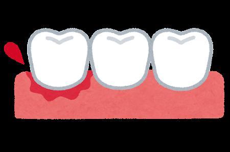 歯肉の腫れ、出血